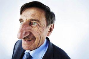 引用 : http://www.funcage.com/blog/9-worlds-most-incredible-and-extreme-body-parts/mehmet-ozyurek-longest-nose-8-8-cm/