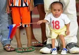 世界最小の人2